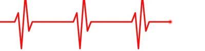 electrocardiogram-5090352_640